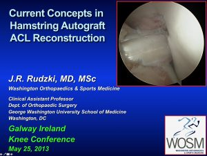 Galway Ireland Lecture on ACL Reconstruction Arthroscopy Hamstring Rudzki