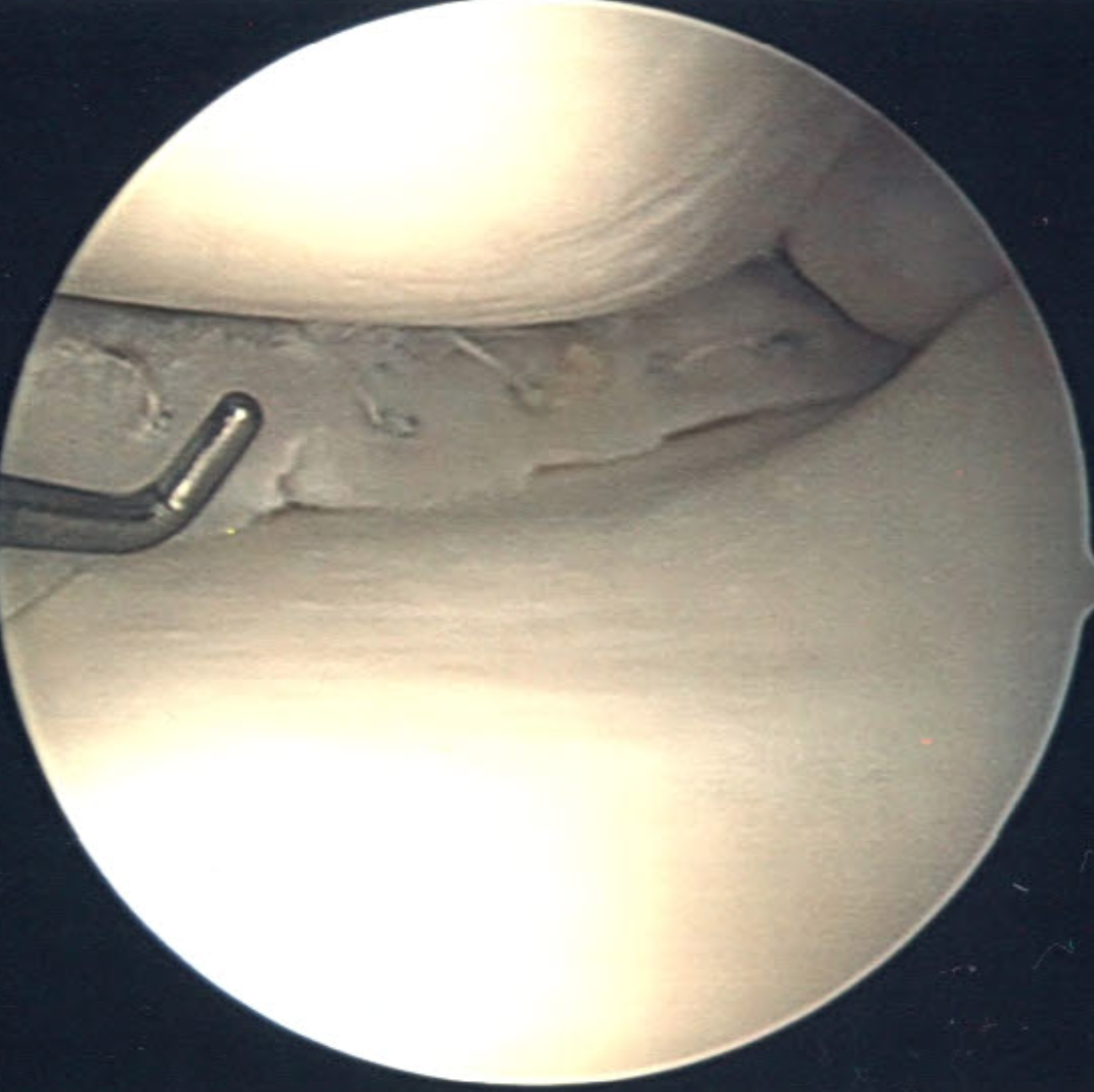 Arthroscopic repair of bucket-handle medial meniscal tear