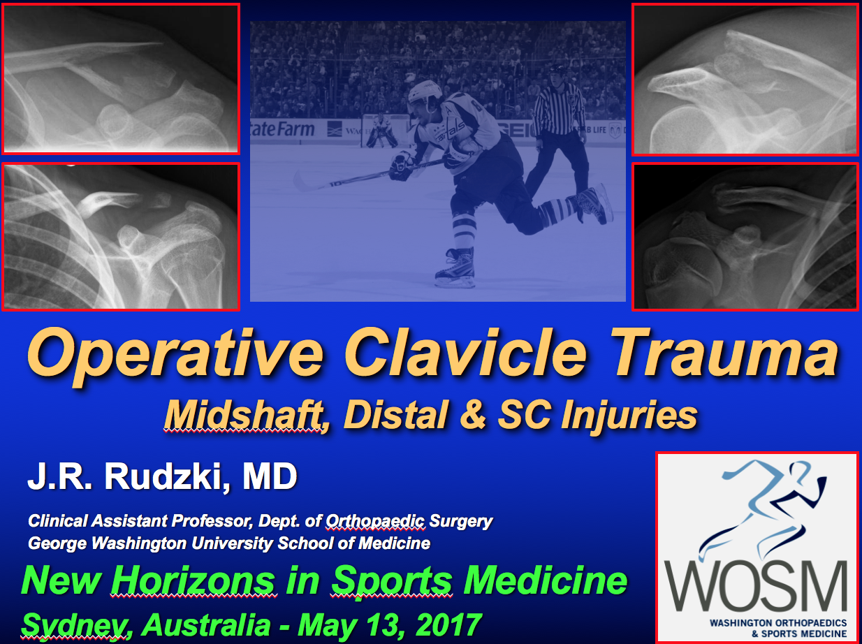 Clavicle Fractures 2017 Sydney, NSW Australia, New Horizons in Sports Medicine, Rudzki, Shoulder Expert