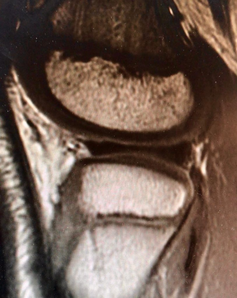 MRI, Discoid Lateral Meniscus, Surgery, Rudzki