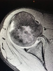Hill-Sachs Lesion and Capsule Injury